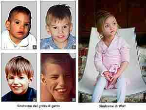 A sinistra: gruppo dibambini di diverse età affetti da sindrome del grido del gatto. A destra bambina con sindrome di Wolf