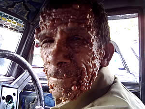 Fotografia del viso di un uomo affetto da neurofibromatosi dermica con crescita di tumori benigni a carico della pelle